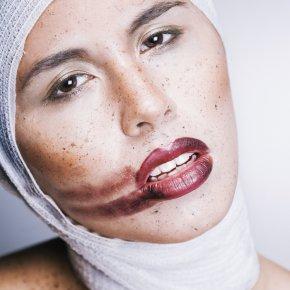 Cosmetics Surgery